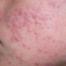 acneea si tenul gras