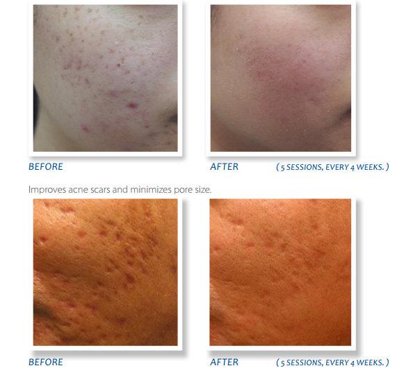 dermapen acne scars